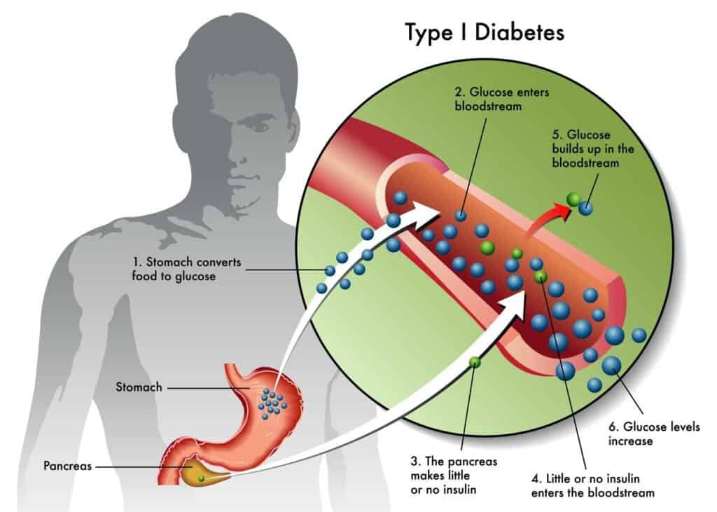 a diagram showing type 1 diabetes
