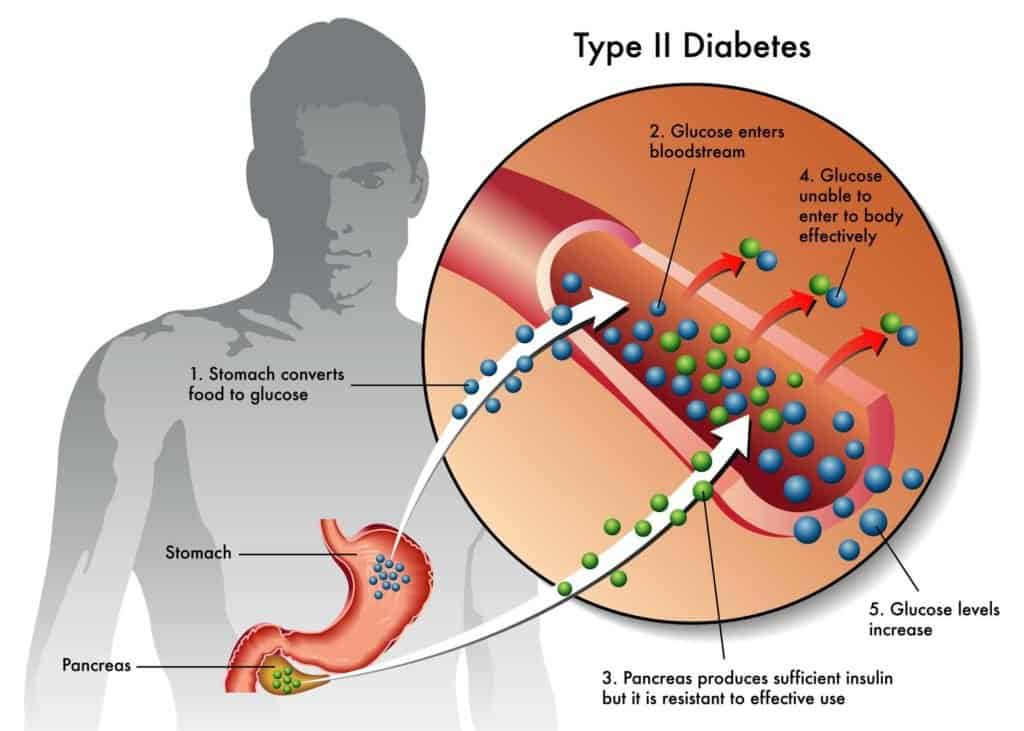 a graphic showing type II diabetes.